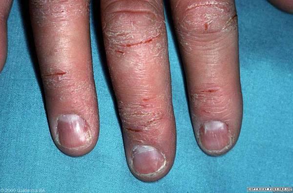 hand eczema 2