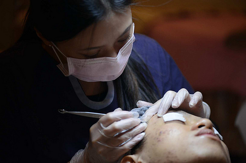 美上美醫美提供優質清粉刺,果酸換膚術後重要的一個步驟