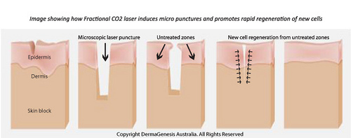 美上美醫學美容提供飛梭雷射與彈力非針治療凹痘疤