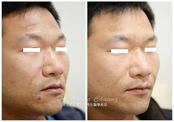 玻尿酸擦掉額頭上面的靜態紋