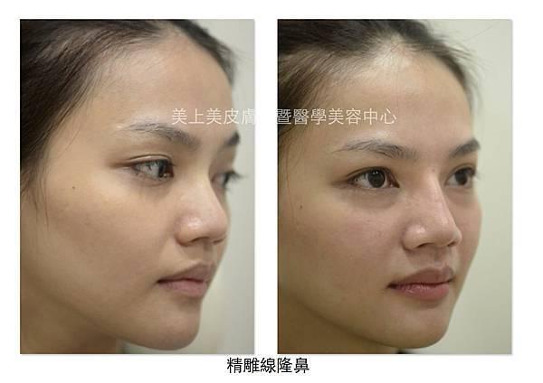 精雕線隆鼻 側臉