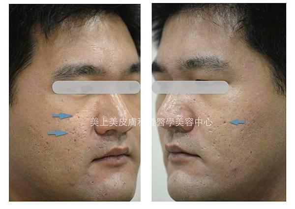 三重美上美醫學美容為凹疤進型手術切除,治療難看的青春痘疤痕。莊盈彥醫師進行W型疤痕手術,讓原本的凹洞消失無蹤。