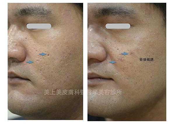美上美醫學美容手術除疤治療難治療的凹洞疤