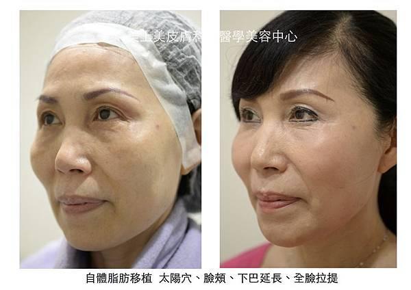 自體脂肪移植 側臉