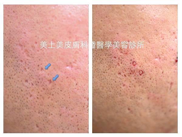 美上美皮膚科專門治療難治的痘疤以及凹痘疤。利用進階的手術技術,專門治療飛梭雷射無法根治的冰鑿型痘疤。