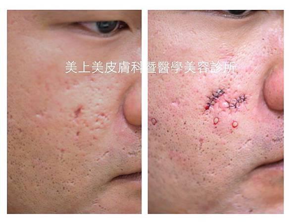 凹洞疤治療,痘疤治療,冰鑿型痘疤,手術治療凹痘疤