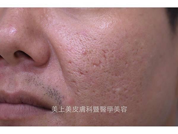 冰鑿型痘疤很多時候無法靠飛梭雷射解決,需要尋求更進階的手術治療才可達到撫平疤痕的效果