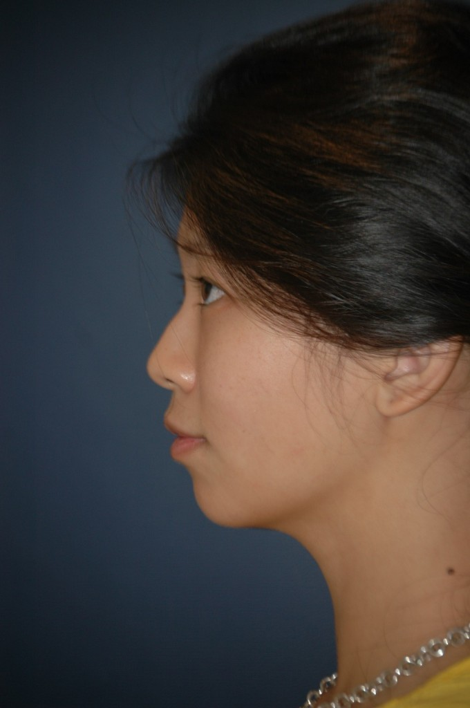 side profile before.jpg
