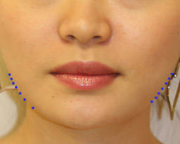 botox-front-dots-aft.jpg