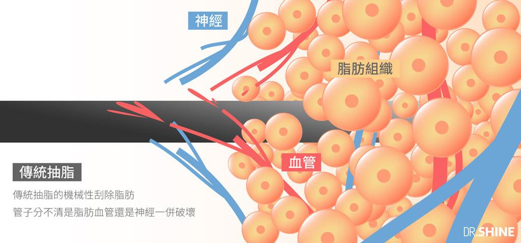 台北抽脂手術光澤診所水刀抽脂雷射溶脂超音波抽脂副作用價格費用複合式抽脂手術 (1).jpg