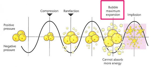 台北抽脂手術光澤診所水刀抽脂雷射溶脂超音波抽脂副作用價格費用複合式抽脂手術 (4).jpg