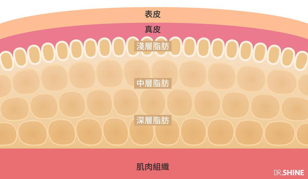 台北抽脂手術光澤診所水刀抽脂雷射溶脂超音波抽脂副作用價格費用複合式抽脂手術 (6).jpg