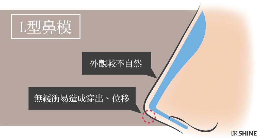 光澤診所隆鼻手術複合式隆鼻結構式隆鼻鼻頭墊山根I型鼻模整型外科 (3).jpg