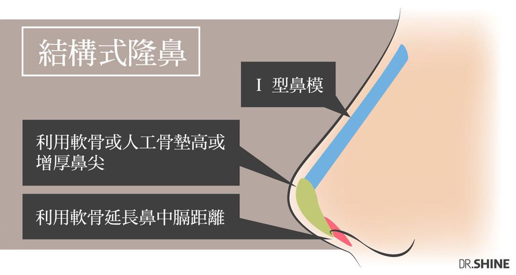 光澤診所隆鼻手術複合式隆鼻結構式隆鼻鼻頭墊山根I型鼻模整型外科 (4).jpg