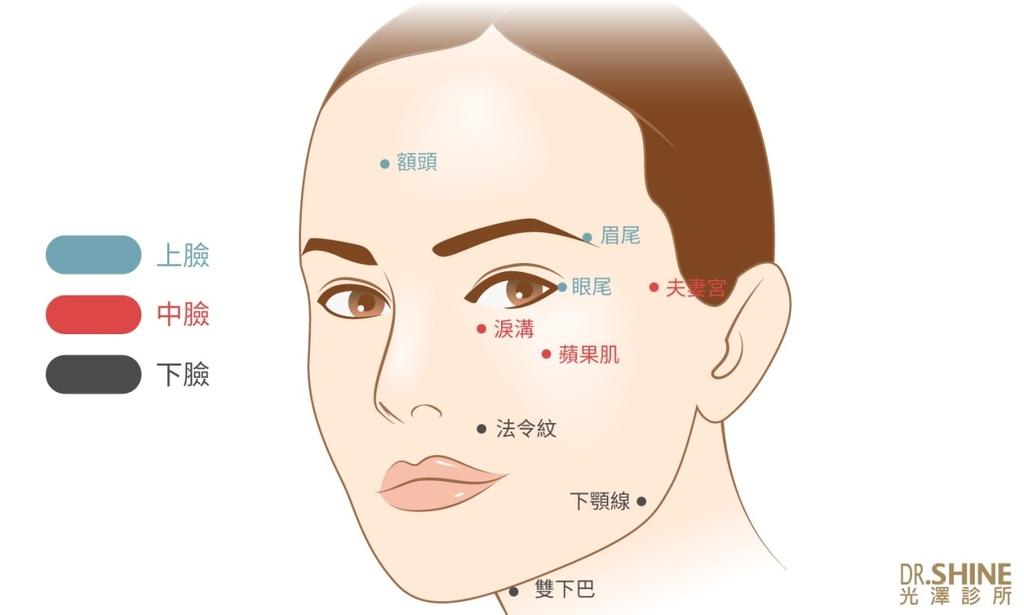 光澤診所藝術面雕微整型Ellanse洢蓮絲3D聚左旋乳酸 (3).jpg