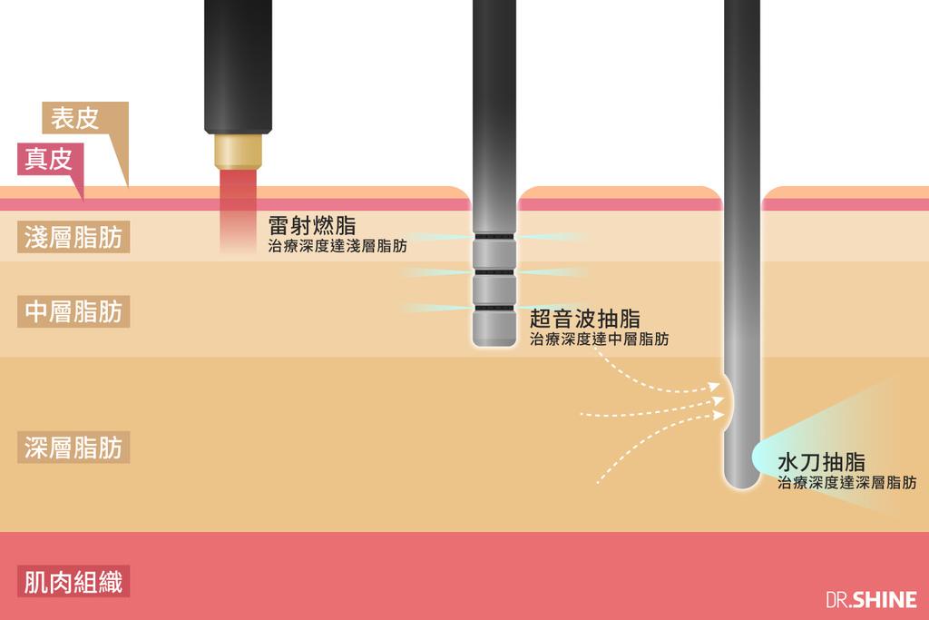 台北抽脂手術光澤診所水刀抽脂雷射溶脂超音波抽脂副作用價格費用複合式抽脂手術