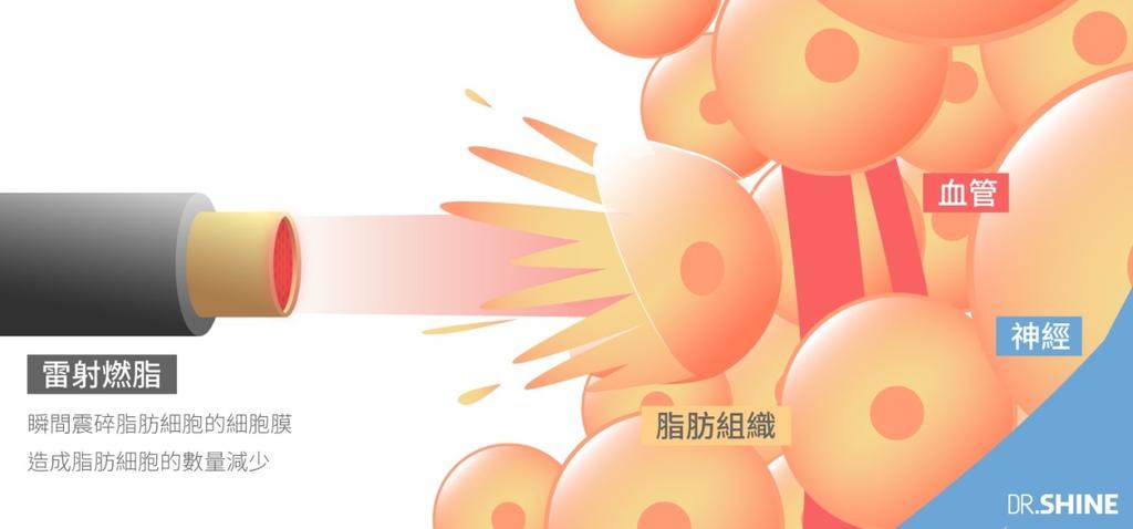 超音波抽脂水刀抽脂腹肌AB線雷射溶脂複合式抽脂5