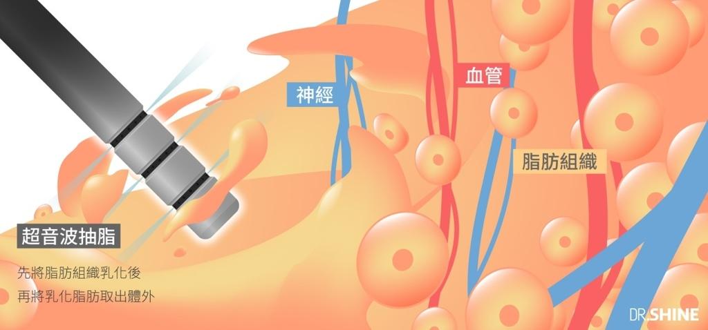 超音波抽脂水刀抽脂腹肌AB線雷射溶脂複合式抽脂3
