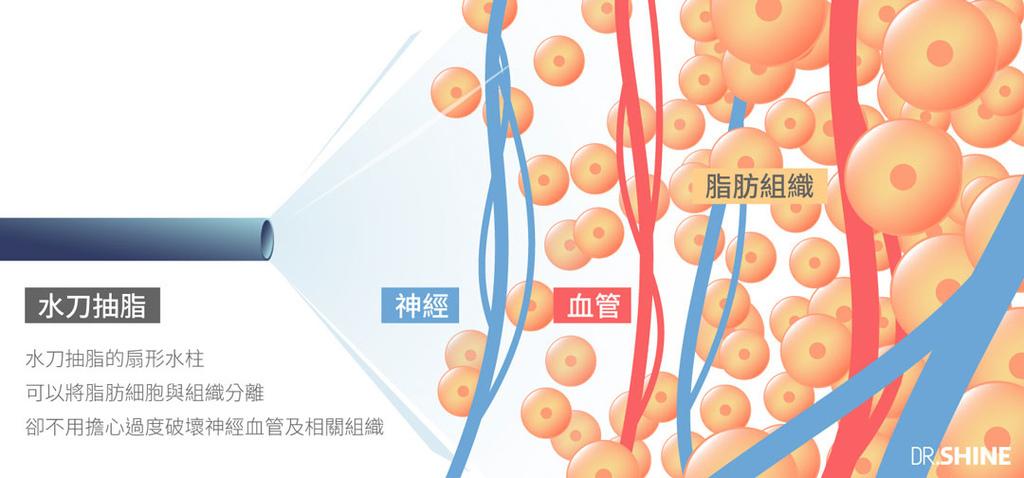 超音波抽脂水刀抽脂腹肌AB線雷射溶脂複合式抽脂4