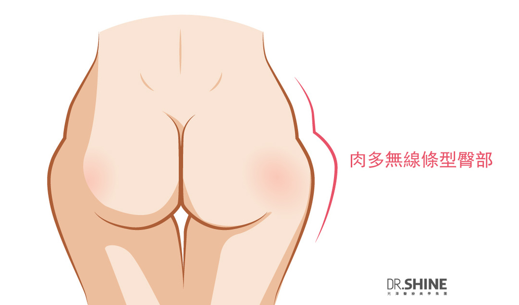 光澤藝術體雕複合式抽脂手術翹臀美臀體態曲線微笑線屁股 (3).jpg