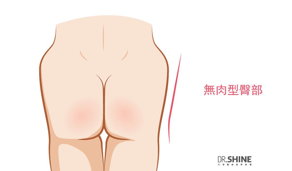 光澤藝術體雕複合式抽脂手術翹臀美臀體態曲線微笑線屁股 (4).jpg