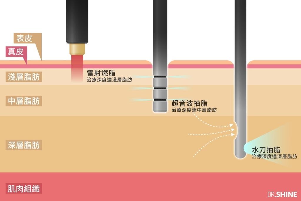 光澤診所複合式抽脂手術水刀水支超音波抽脂雷射溶脂減肥瘦身減脂台北抽脂板橋診所(3).jpg