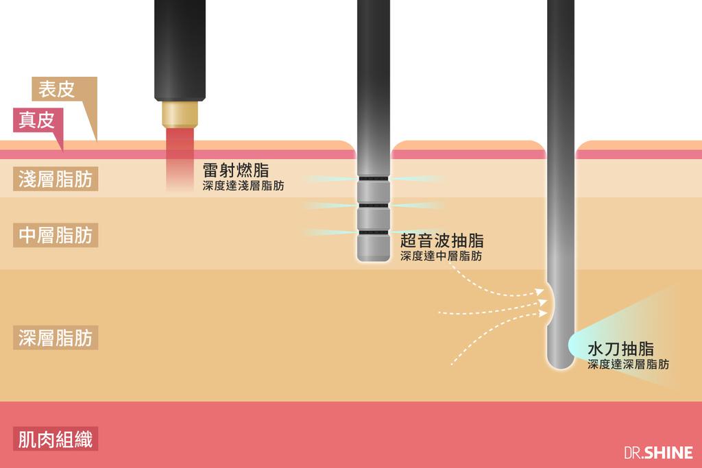 光澤複合式抽脂