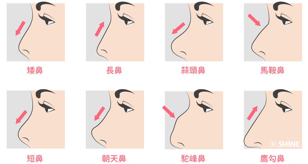 板橋光澤診所結構式隆鼻手術I型鼻膜隆鼻台北醫美整形 (2).jpg