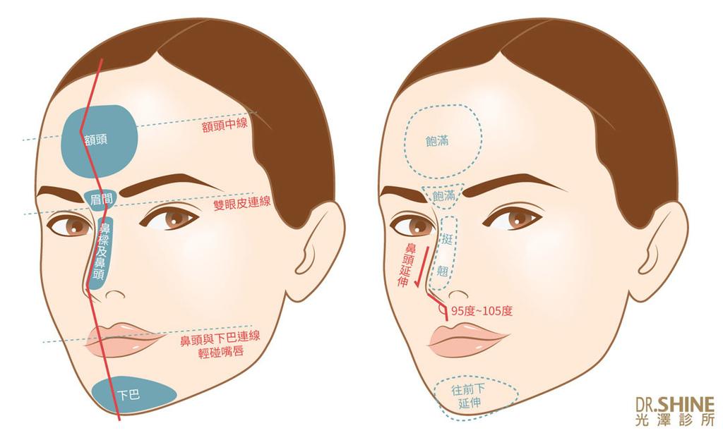 板橋光澤診所結構式隆鼻手術I型鼻膜隆鼻台北醫美整形 (6).jpg
