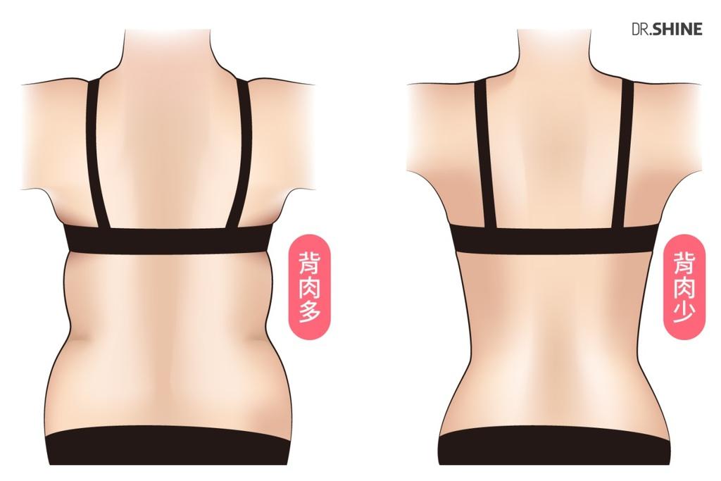 光澤診所複合式抽脂手術水刀抽脂超音波抽脂雷射溶脂虎背熊腰腰腹 (2).jpg