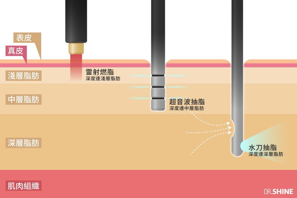 光澤診所複合式抽脂手術水刀抽脂超音波抽脂雷射溶脂虎背熊腰腰腹 (3).jpg