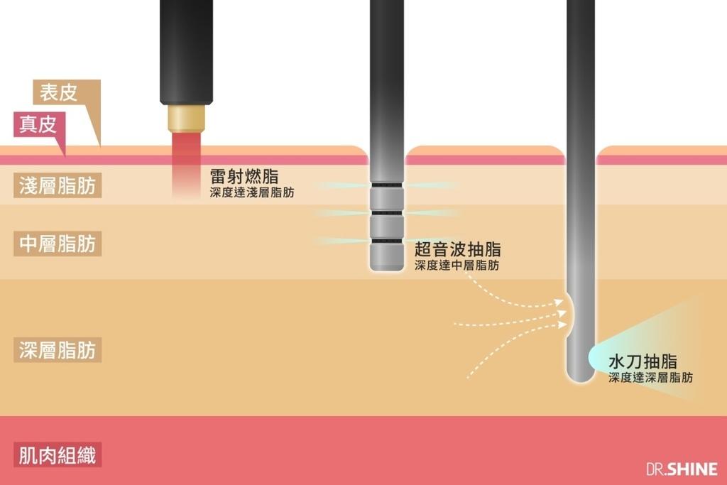 複合式抽脂水刀抽脂超音波抽脂雷射溶脂雷射燃脂抽脂減肥抽脂手術光澤診所瘦身體雕比基尼夏天減肥09.jpg