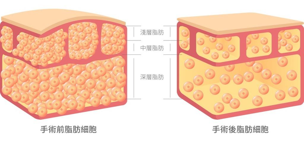 複合式抽脂水刀抽脂超音波抽脂雷射溶脂雷射燃脂抽脂減肥抽脂手術光澤診所瘦身體雕比基尼夏天減肥10.jpg