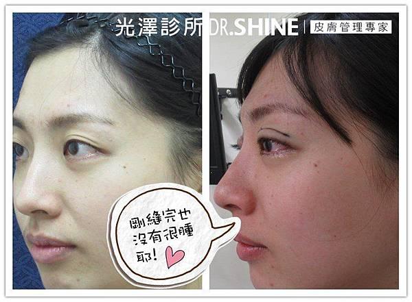 光澤診所客製化雙眼放大術