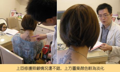 除刺青3.jpg