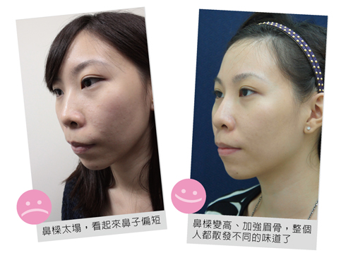 微晶瓷-鼻子2-01
