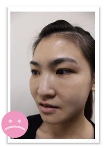 微晶瓷-鼻子