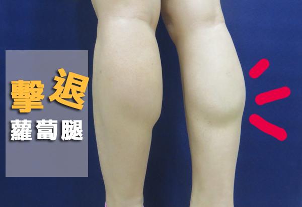 肉毒瘦小腿3
