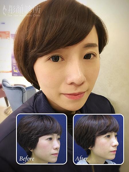 隆鼻-立體結構式隆鼻-卡麥拉隆鼻-縮鼻翼-大韓隆鼻-結構式隆鼻-彤顏診所-整形外科-蒜頭鼻-隆鼻費用