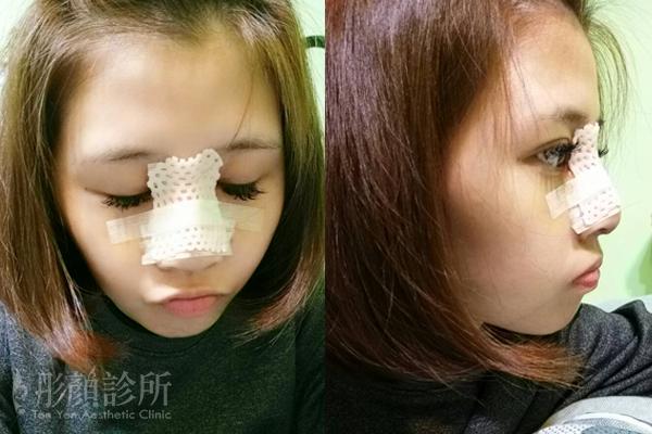 彤顏診所-隆鼻-立體結構式隆鼻-3段鼻雕-卡麥拉隆鼻-蒜頭鼻-韓式隆鼻-整形外科-劉宏貞醫師-縮鼻翼-鼻膜