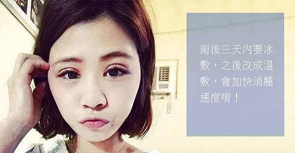 彤顏診所-訂書針雙眼皮-割雙眼皮-眼神放大術-提眼瞼肌-整形外科-開眼頭-訂書針雙眼皮費用-單眼皮-眼神-電眼-縫雙眼皮-縫雙眼皮手術