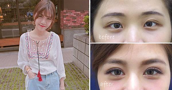 彤顏診所-雙眼皮-訂書針雙眼皮-割雙眼皮-眼神放大術-提眼瞼肌-整形外科-開眼頭