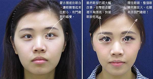 彤顏診所-訂書針雙眼皮-割雙眼皮-眼神放大術-提眼瞼肌-整形外科-開眼頭-訂書針雙眼皮費用-單眼皮
