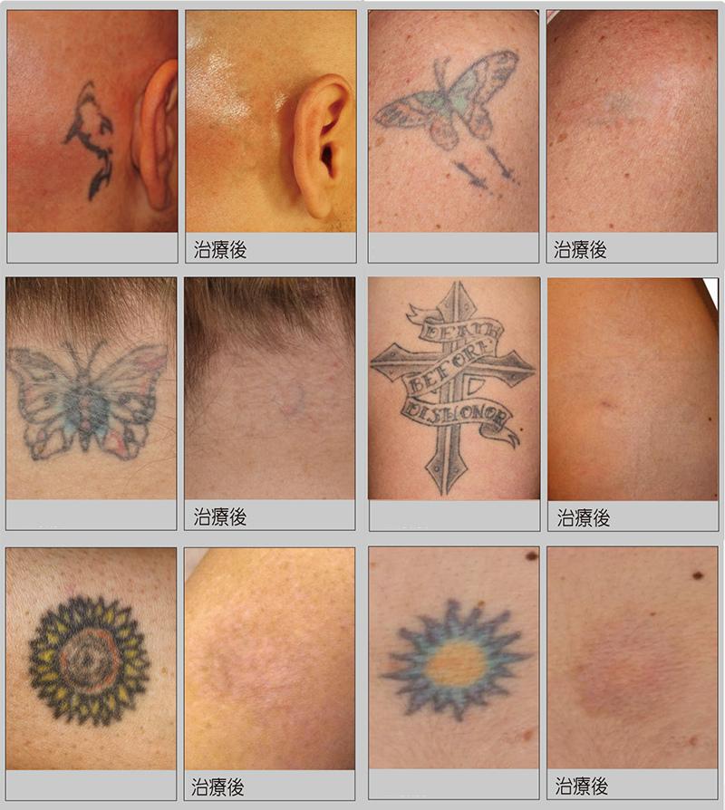 7刺青案例.jpg