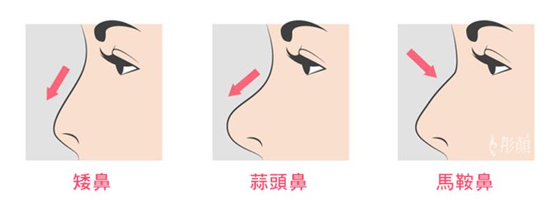 01鼻型.jpg