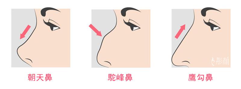 02鼻型.jpg
