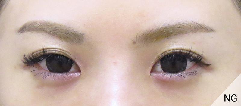 彤顏診所-桃園中壢-雙眼皮-訂雙眼皮-郭亞欣醫師