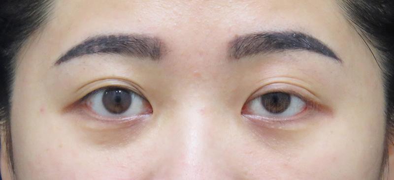 彤顏診所-桃園中壢-大小眼-提眼瞼肌-割雙眼皮-郭亞欣醫師