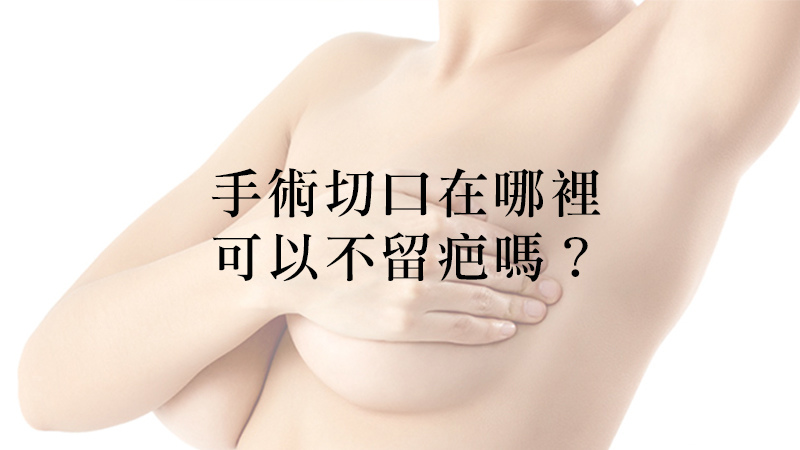 手術留疤-彤顏診所-整形外科-劉宏貞醫師-隆乳-脂感水滴隆乳-自體脂肪隆乳-果凍隆乳
