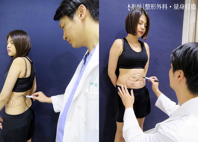 就是要炫「腹」!擺脫小腹婆,我用藝術體雕-脂雕達人 陳錫賢醫師-複合式抽脂-腹部環抽